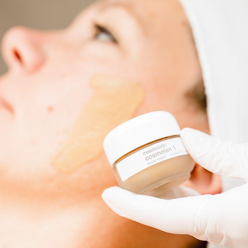 Cosmelan-behandeling mesoestetic The Peeling Clinic