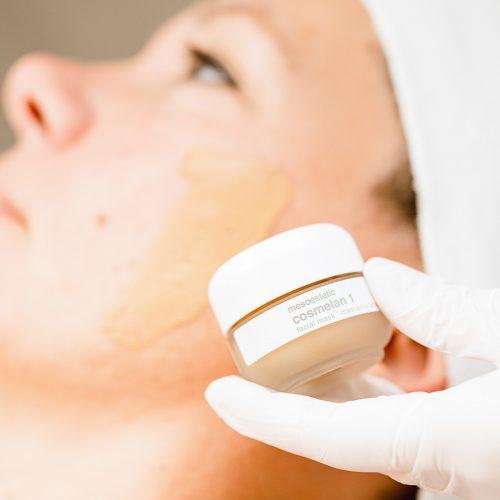 Dé behandeling tegen pigmentvlekken: Cosmelan van Mesoestetic
